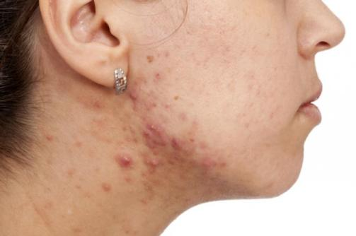 The intestinal health might be the solution to acne